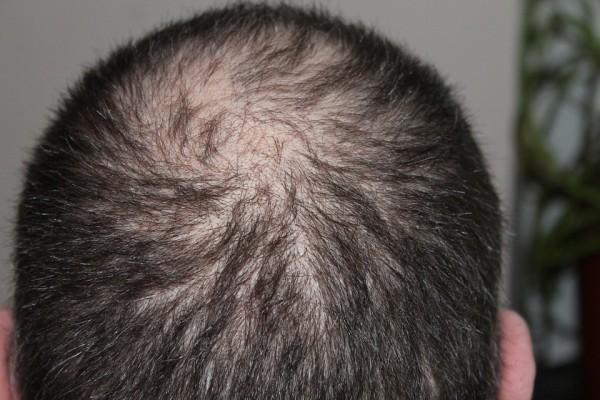 Les solutions pour freiner la chute des cheveux