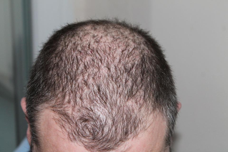 L'essentiel sur la greffe de cheveux FUT ou Follicular Unit Transplant